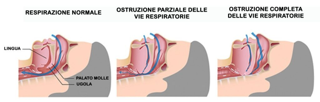 apnea-ostruttiva